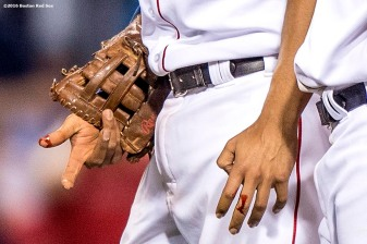 BOSTON, MA - MAY 25: The finger of Xander Bogaerts #2 of the Boston Red Sox is shown following an injury during the eighth inning of a game against the Colorado Rockies on May 25, 2016 at Fenway Park in Boston, Massachusetts. (Photo by Billie Weiss/Boston Red Sox/Getty Images) *** Local Caption *** Xander Bogaerts